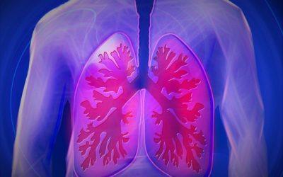 Die Lunge – Pneumonia